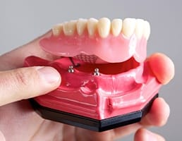 Model dental implant supported denture