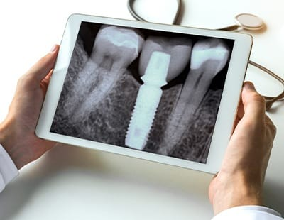X-ray of dental implant supported replacement tooth