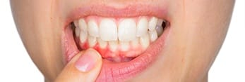 Closeup of inflamed gums before periodontal treatment